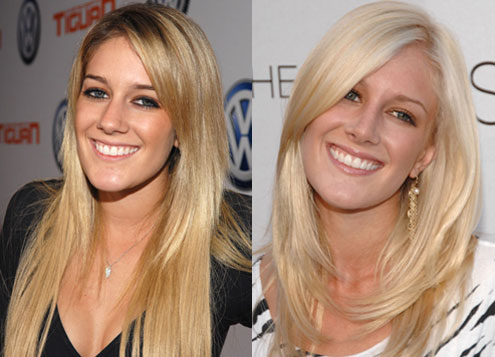 heidi montag before and after 10 surgeries. heidi montag is an  idiot.